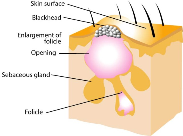 acne-diagram