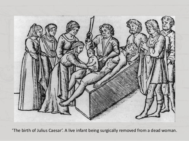 illustration-of-the-birth-of-julius-caesar-by-cesarean-section-from-cwbtpc