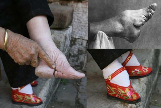 Lotus feet and the result on women.